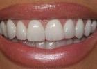 Делаем красивые зубы - от простой гигиены до сложных операций