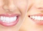 Как отбелить зубы: секреты голливудской улыбки