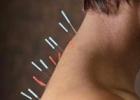 Акупунктура: уколы здоровья по-восточному