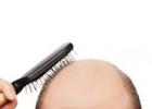 Выпадение волос – можно ли исправить ситуацию?